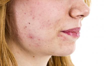 get rid of pimple scab