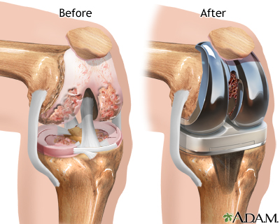knee replacement in Singapore